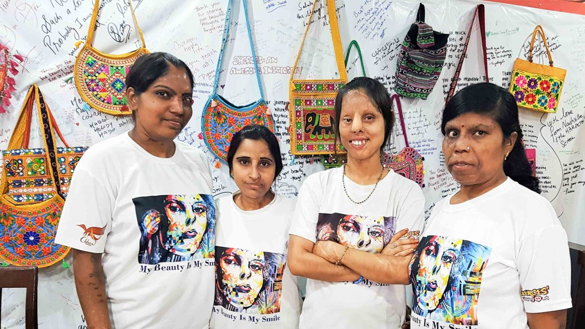 How this Agra café is helping India's acid attack survivors